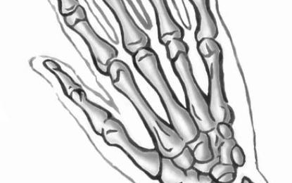 Lega di titanio nella chirurgia di mano e polso