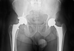 protesi-articolari-e-revisioni-in-forte-crescita