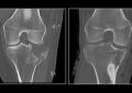 Ultra-low dose, le Tac <br />con radiazioni ridotte al minimo