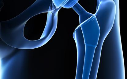 Protesi d'anca, approccio chirurgico incide sui risultati?