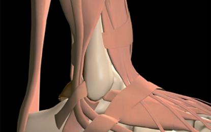 Rottura del tendine d'Achille: opzioni di trattamento a confronto