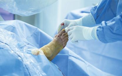 Una rassegna delle soluzioni ortobiologiche per la chirurgia di piede e caviglia