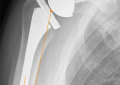 Protesi inversa: come ottimizzare<br/> la configurazione dell&#8217;impianto<br/> e scegliere la tecnica chirurgica