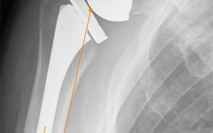 Protesi inversa: come ottimizzare la configurazione dell'impianto e scegliere la tecnica chirurgica