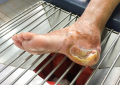 Fissatore esterno chiave di successo in uno studio sul piede diabetico