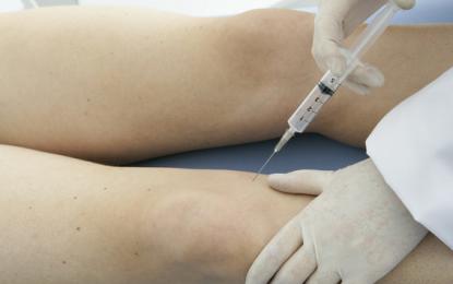 Novità nel trattamento dell'osteoartrosi: acido ialuronico cross-linkato  più corticosteroide ad azione ancillare