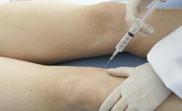 Novità nel trattamento dell&#8217;osteoartrosi:</br> acido ialuronico cross-linkato </br> più corticosteroide ad azione ancillare