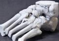 Congresso Idbn: <br>3D Printing and Biomechanics