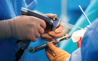 Osteotomia tibiale alta valgizzante, riabilitazione con pesi è sicura ed efficace
