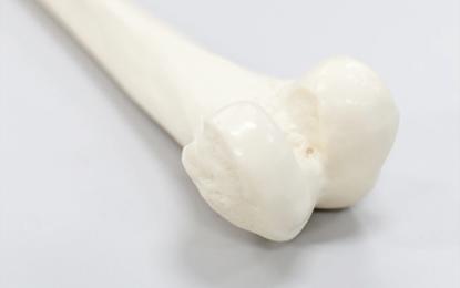 Fratture del femore distale: l'opzione della protesi di ginocchio