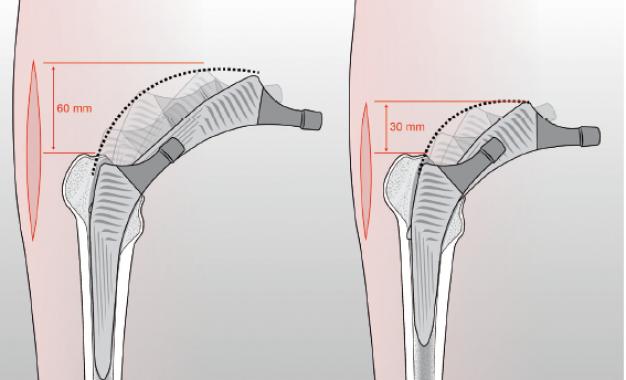 Protesi d&#8217;anca mininvasiva: l&#8217;esperienza <br>del Rizzoli di Bologna esportata <br>in Usa diventa una nuova protesi
