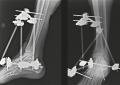 Lussazione sotto-astragalica, prevenzione della necrosi avascolare con la stimolazione biofisica: due casi clinici