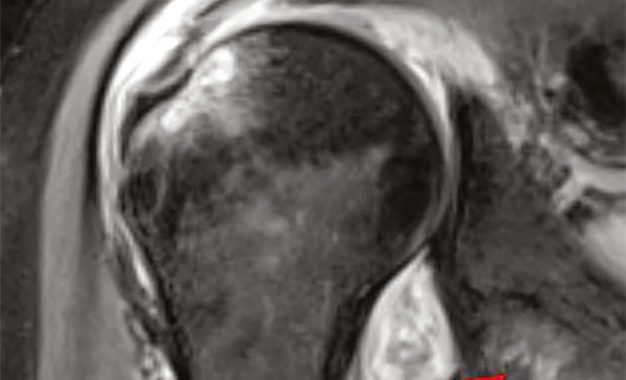 Nell'imaging le complicanze <br>muscolo-scheletriche del Covid